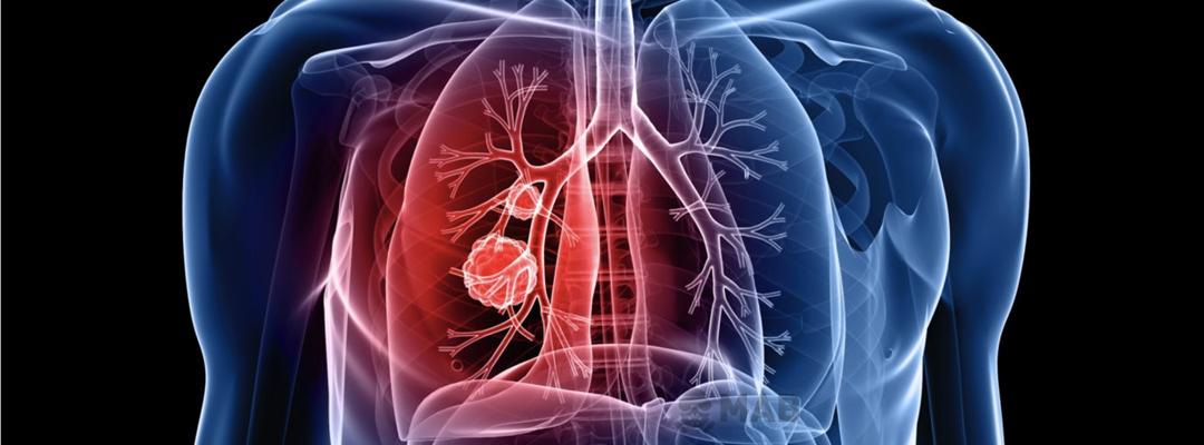 MAB Yıkım, Asbest Söküm, Asbestli İnşaat, Yapı ve Bina Söküm Hizmetleri Gerçekleştiren Profesyonel Bir Asbest Söküm Firmasıdır.